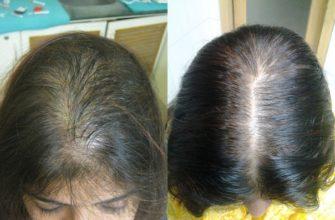 """""""10 нельзя"""" при выпадении волос"""