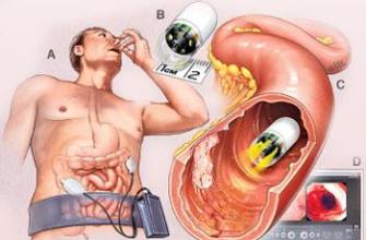 Как проверить желудок без глотания зонда (ФГДС)