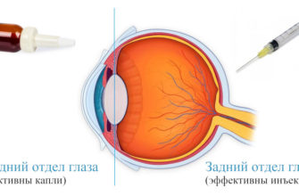 Какие лекарственные препараты применяются для лечения болезней сетчатки глаза: список, механизм действия
