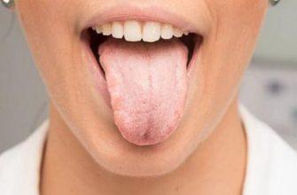 Кандидоз полости рта - симптомы, лечение и профилактика