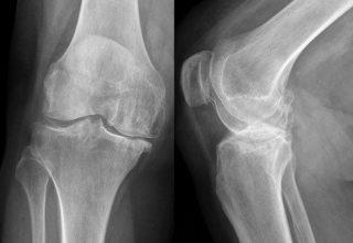 Рентген коленного сустава - эффективность