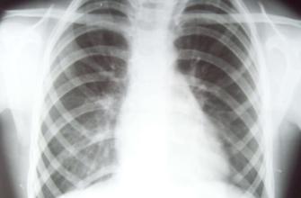 Рентген ребер - рентгенография ребер в клинико-диагностическом центре Альфа-Центр Здоровья