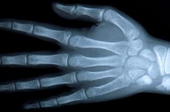 Рентген снимок кистей рук: зачем делать, что показывает, снимок здорового человека