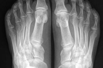 Рентген стопы и голеностопного сустава: показания, диагностика, результаты