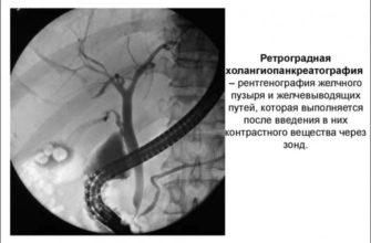 Рентген желчного пузыря и желчных протоков: показания, противопоказания