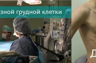 Торакальная хирургия - хирургия органов грудной клетки